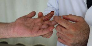 Talihsiz İşçinin Parmakları Koptu