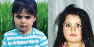 Küçuk Leyla Açlıktan Ölmüş